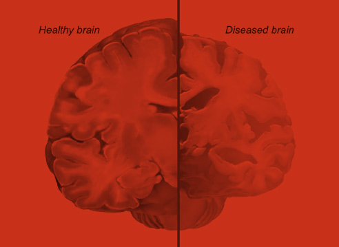 Comparison between a healthy human brain and a diseased human  					brain.